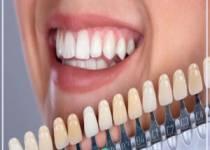 Porselen Diş Yapımında Güvenin Adresi