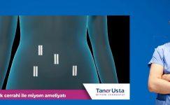 Çikolata Kistinin (Endometriozis) Robotik Cerrahi ile Çözümü